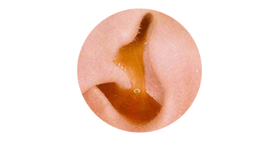 Fluid or pus like fluid coming from the ear