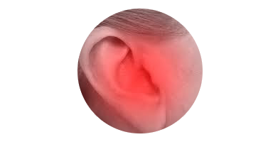 Redness in your ear