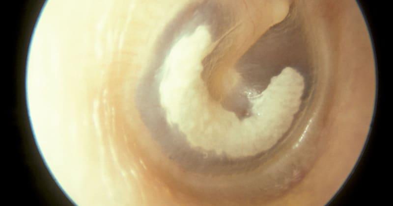 Tympanosclerosis